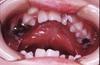 口蓋裂の不正咬合