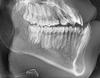 顎変形症(反対咬合)